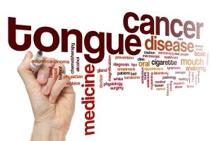 Tongue cancer word cloud concept