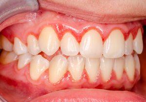 teeth with gingivitis