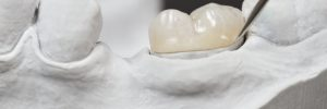 closeup for dental onlay on a molar tooth shown on a plaster model