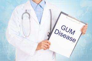 dallas gum disease